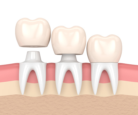 Dental crowns at Advanced Family Dentistry